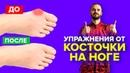 Упражнения от косточки на ноге, гимнастика для большого пальца ноги Вальгусная деформация.