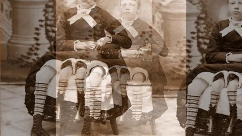 Жозефин Миртл Корбин Техасс была единственной в мире четырехногой женщиной